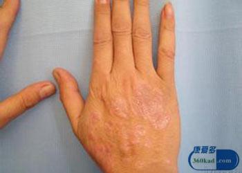 银屑病的发病原因是什么 了解病因是关键