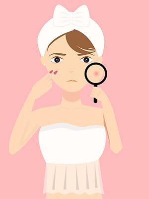 紅霉素軟膏治痤瘡有戲