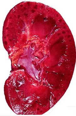 肾炎的早期症状有哪些