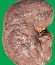 肾炎是怎么引起的 有什么症状呢
